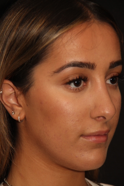 rhinoplasty Toronto before and after