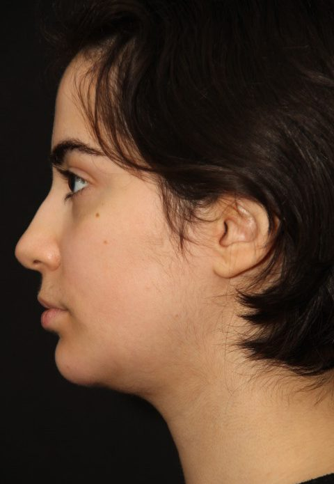 chin-implant-After